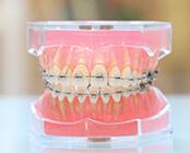 ブラケット。歯の表面に装置を装着する一般的な方法。