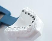 リンガル。歯の裏側に装置を装着する目立ちにくい方法。