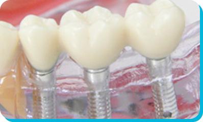 えんどう歯科・矯正歯科クリニックのインプラン治療の流れ。ステップ6。人工歯の取り付け。